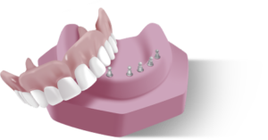 Miracle Mini Implant Snap in Dentures