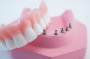 Overview of Implant Dentures